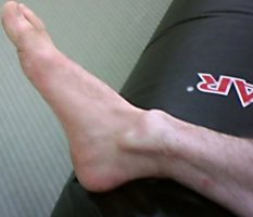 Deformed_ankle